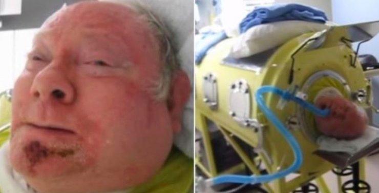 Han har varit fastbunden i 60 år – orsaken gör mig chockad