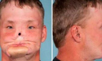 Han försökte begå självmord genom att skjuta sig – men se hur han ser ut efter en otrolig operation!