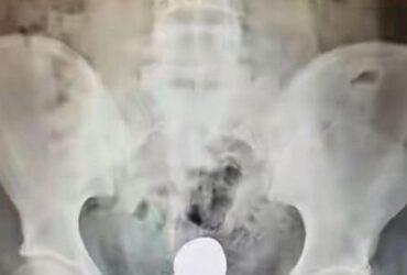 Den generade kvinnan ska bli röntgad. Men när läkarna ser problemet, gör de sig redo att operera OMEDELBART!