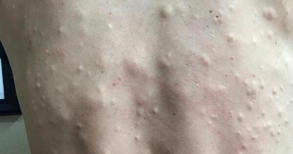 Han går till läkaren med ryggen täckt av knölar – se när hon skär hål på dem