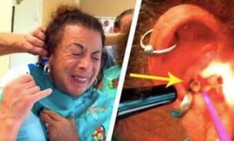 Kvinnan ber doktorn om hjälp – då drar han ut något enormt från hennes öra!
