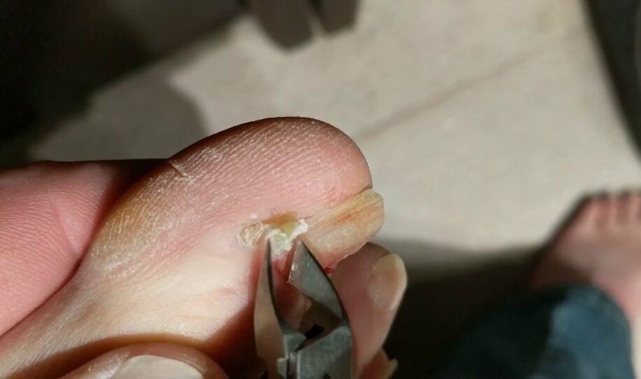 Mannen har nageltrång – men se vad som händer när han drar ut nageln